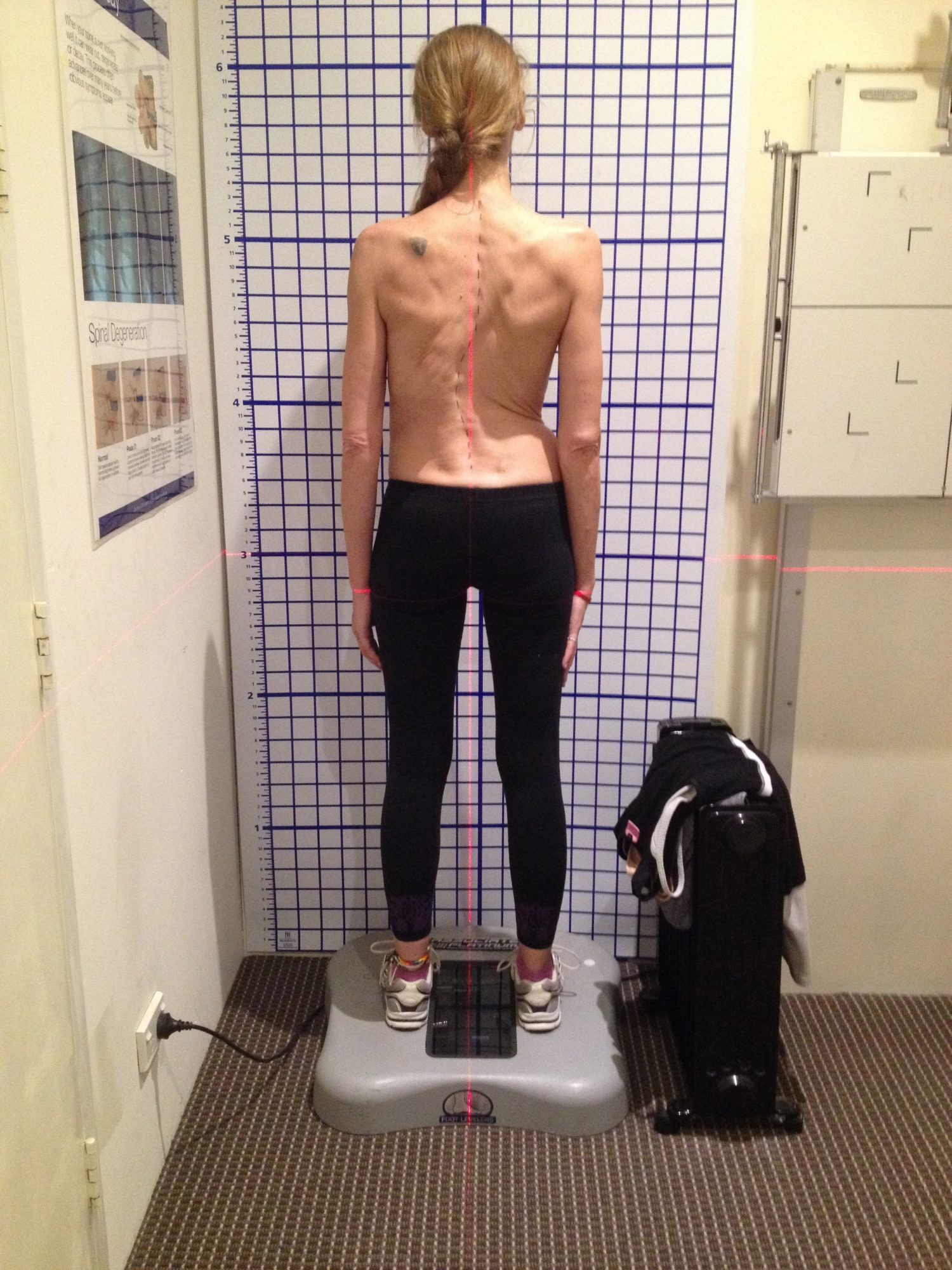 case study for scoliosis Adolescent idiopathic scoliosis in a 15-year-old female: vote in spineuniverse's interactive case study can patients find you list your practice in our directory.
